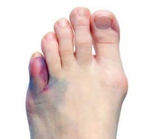 Offence - The Toe Analogy
